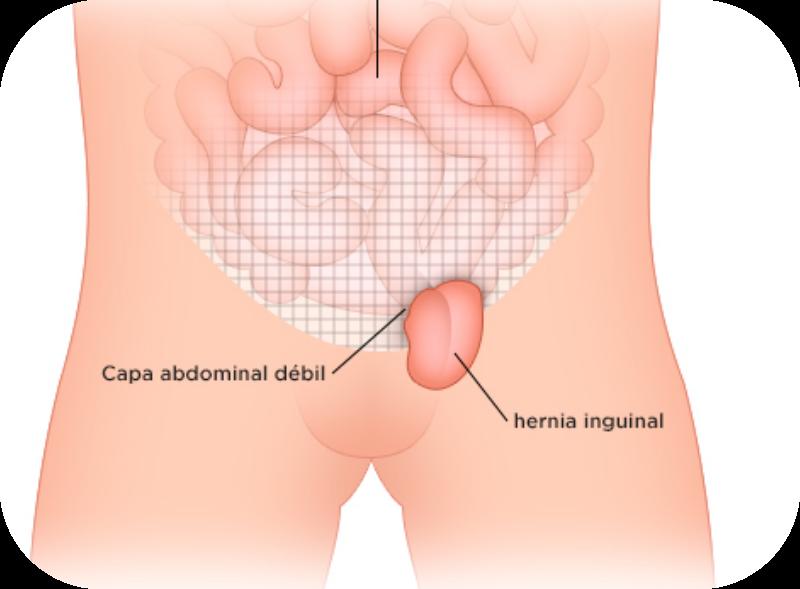 operacion_de_hernias_lima-1
